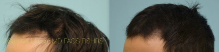 Dallas Prp Injections Before And After Photos - Plano Plastic Surgery Photo Gallery - Dr. Samuel